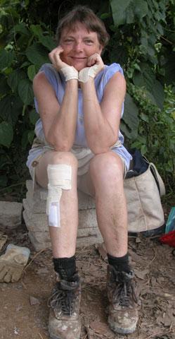skinned-knee